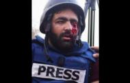جرائم الاحتلال: عدسة فلسطين غير كل العدسات